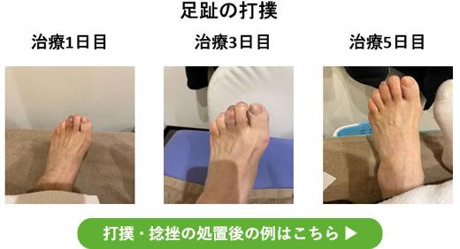 足趾の打撲