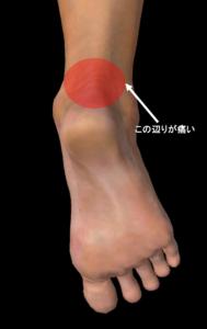アキレス腱炎の痛む箇所