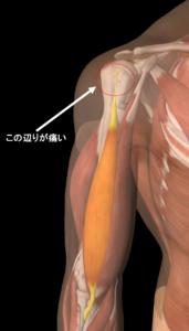 上腕二頭筋長頭腱炎の痛い場所の説明画像