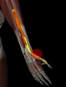 ドケルバン病の筋肉